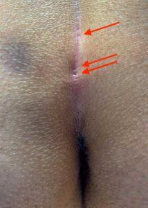 Pilonidal Sinus Symptoms: numerous pits