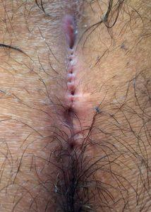 Pilonidal Sinus Symptoms: multiple pits
