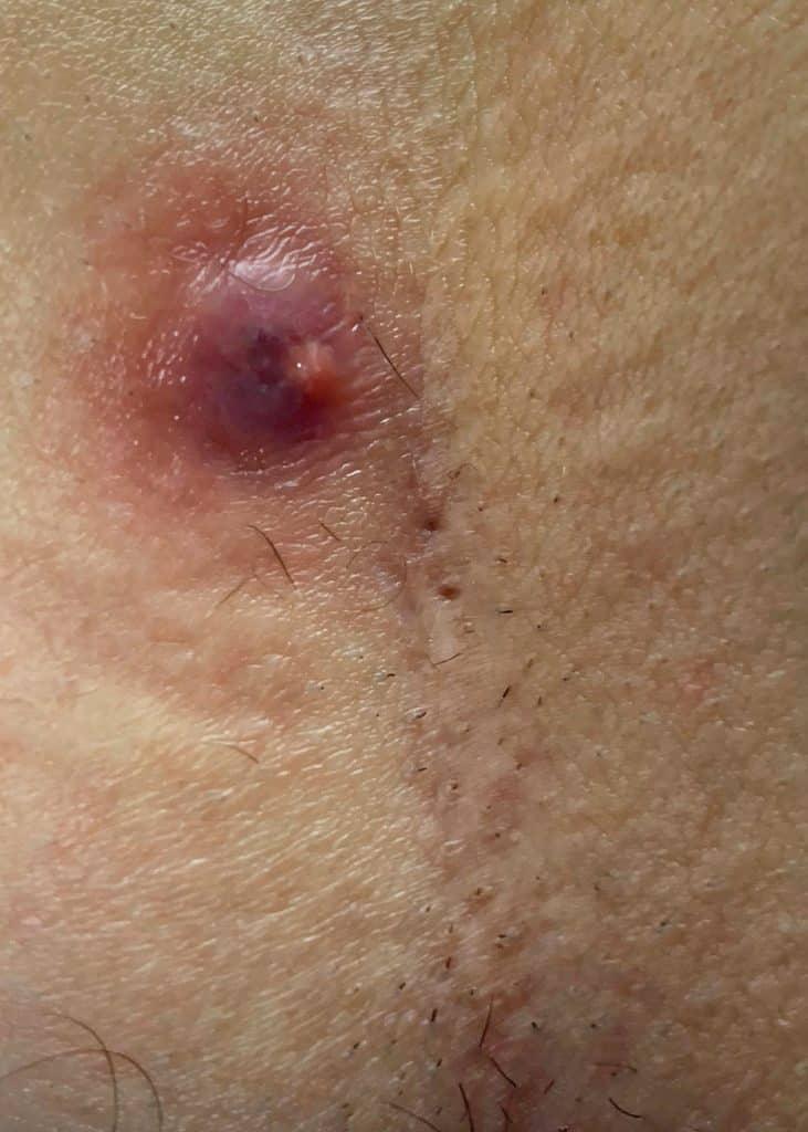 أعراض النزيف في ناسور العصعص