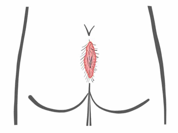 الرسم التخطيطي العصعص ناسور نوع IV B