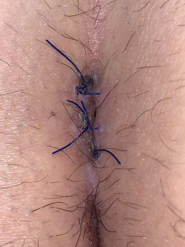 Pilonidalsinus OP'de dikiş ile komplikasyon