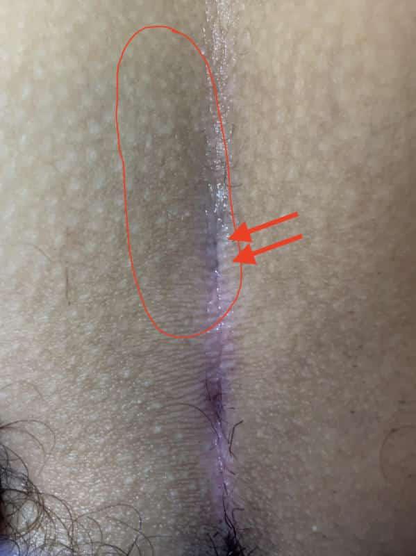 النوع الأول B الناسور مع حفر يمكن التعرف عليها إلا على التفتيش عن كثب. اِلَمَف مجروح يحتوي على شعر وفير أثناء العملية.