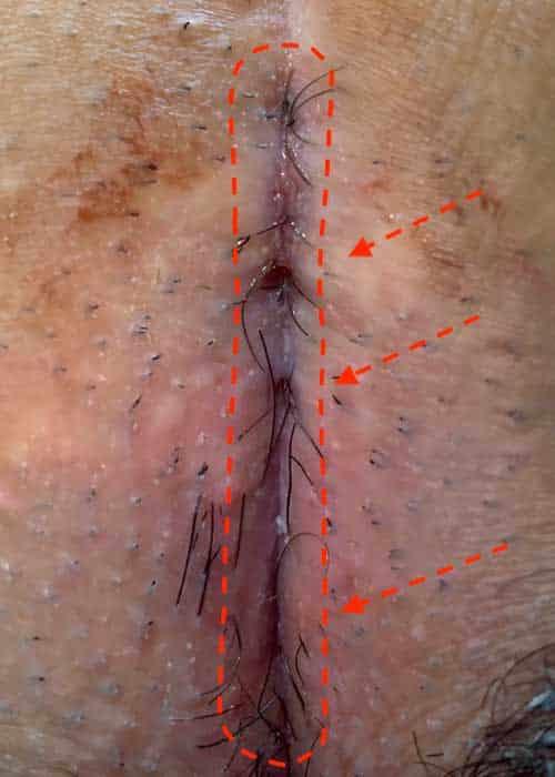 النوع الرابع B العصعص الناسور، عدة بوابات مدخل للشعر في ندبة القديمة