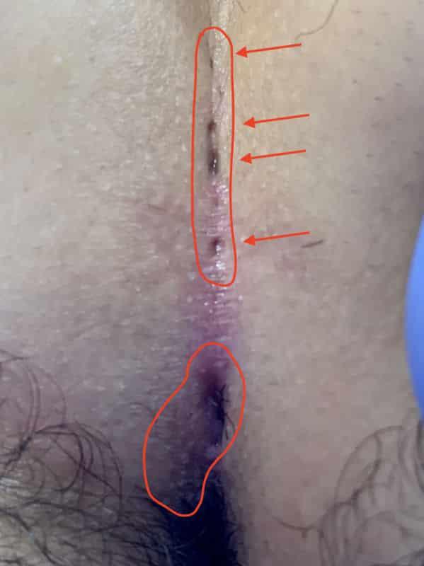 صورة 2 ناسور عصعص مستقل في نفس المريض