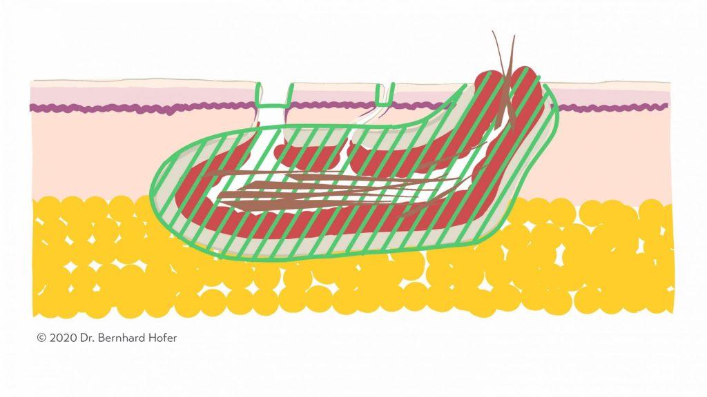 Синусэктомия Минимальная трубчатая фистулэктомия масштабируется 1