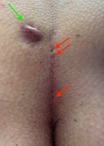 Pilonidal Sinus Symptoms: Pimples on the buttocks as a SInus pilonidalis symptom