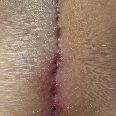 Numerous Pits - the Pilonidal Sinus cause